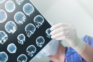 Si el paciente padece epilepsia puede sufrir consecuencias en su estado de salud a nivel cognitivo, neurológico, psicológico y emocional.