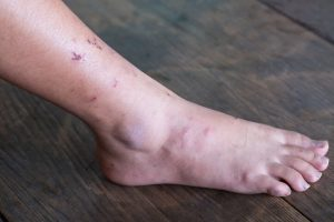 Los principales factores desencadenantes son traumatismos, infecciones bacterianas y la falta de riego sanguíneo en la zona.