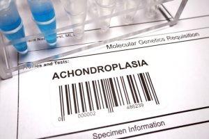 La acondroplasia puede ser detectada antes del nacimiento. En una ecografía fetal puede evidenciarse una discordancia entre las partes del cuerpo.