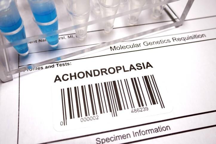 Los Últimos Tratamientos para la Acondroplasia