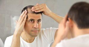 Diversas causas pueden provocar alopecia o caída del cabello y en muchos casos también puede ser un proceso biológico normal, asociado con la edad, o con la predisposición genética.