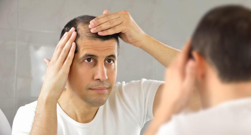 Diagnóstico y Tratamiento de la Alopecia