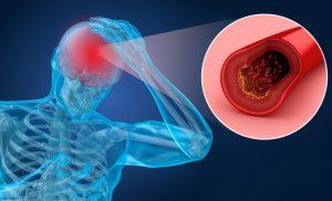 La causa principal de la isquemia es la interrupción del flujo sanguíneo arterial a una parte del cuerpo, esto se puede producir por alteración en la arteria o por un trombo que obstruye el paso de sangre.