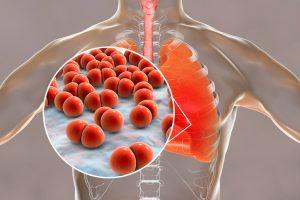 Los síntomas más comunes de la neumonía son: tos productiva, fiebre elevada, malestar general, dolor en el tórax y dificultad respiratoria.