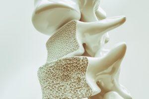 La osteoporosis es una enfermedad común que va en aumento, probablemente por la adopción de factores de estilo de vida en el mundo occidental que la favorecen y las mayores expectativas de vida y envejecimiento de la población.
