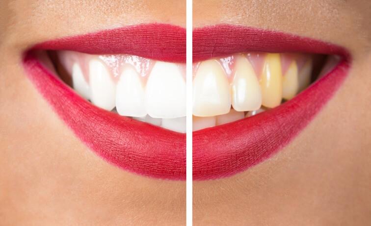 El Blanqueamiento Dental, ¿Puede Ser Perjudicial?