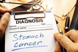 Los síntomas del cáncer gástrico suelen ser tardíos en su aparición, el dolor abdominal, la pérdida de peso y las alteraciones del ritmo intestinal.