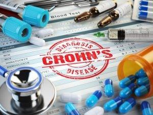 La enfermedad de Crohn suele tratarse con una medicación para reducir la inflamación del aparato digestivo.