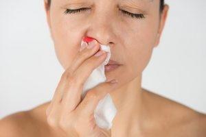 Lo primero que se hace en una epistaxis es tranquilizar al paciente. Se realiza una limpieza y, aspirado de la sangre de la nariz, se localiza el punto de sangrado.