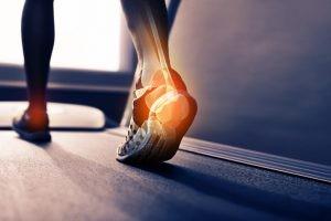 En los casos que el espolón calcáneo presente algún síntoma se manifiesta con dolor punzante en las zonas donde se insertan los tendones en el talón.