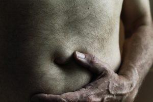 El factor desencadenante de la hernia de hiato es el aumento de presión a nivel del abdomen.