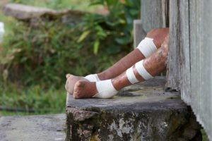 La lepra se contagia a través del contacto persona a persona, por medio del contacto con las secreciones respiratorias.