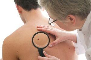 El tratamiento del melanoma tendrá una parte quirúrgica, un tratamiento adyuvante y, por último, un tratamiento de las metástasis, si las hubiera.