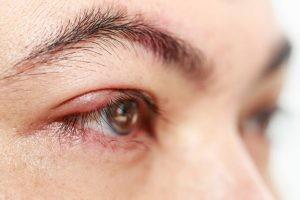 Los síntomas de un orzuelo son una protuberancia roja en el párpado superior o inferior, con hinchazón de este y dolor.