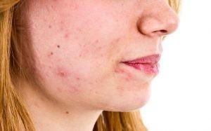 La seborrea puede estar presente en toda la piel excepto en palmas de las manos y plantas de los pies, abundado en el cuero cabelludo, en la cara, el tórax y la espalda.
