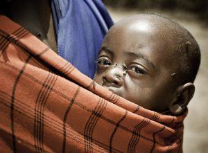 El tracoma es una de las causas evitable de ceguera más frecuente en el mundo.