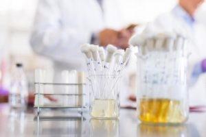 La gota es la enfermedad debida a la deposición de cristales de las sales de ácido úrico en y alrededor de las articulaciones, en diversos órganos y, finalmente, estos cristales también pueden formar cálculos en las vías urinarias.