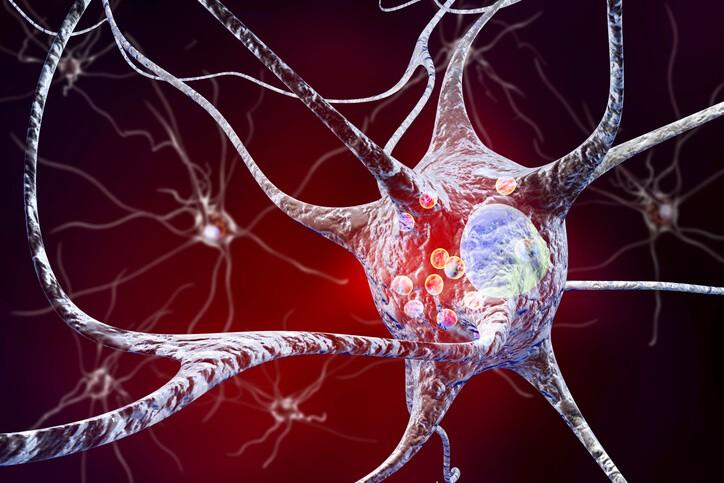 Fases y Evolución del Parkinson