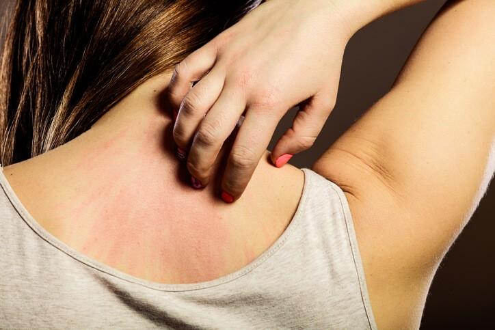 Causas y Tratamientos del Picor