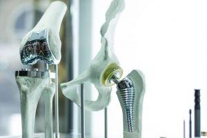 Las causas más frecuentes que ocasionan un recambio articular son la gonartrosis, la artritis reumatoide, el tumor o la displasia y un traumatismo grave.