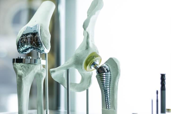 Qué Debes Saber sobre la Prótesis de Rodilla