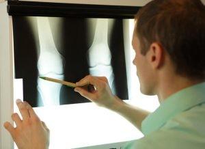 Las lesiones meniscales se clasifican en función del trazo de la lesión o en función de la ubicación de la lesión dentro del menisco.