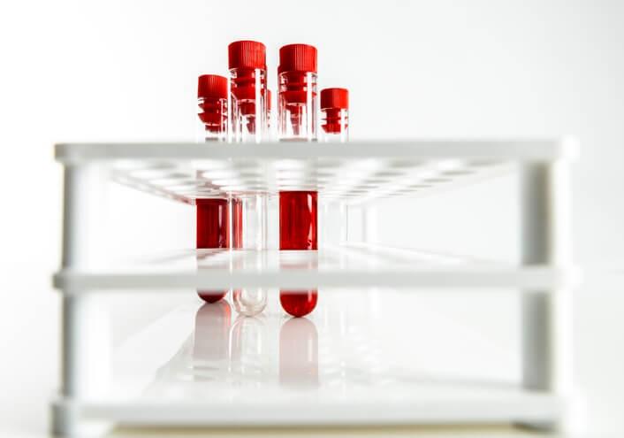 ¿Cómo Interpretar unos Análisis de Sangre?