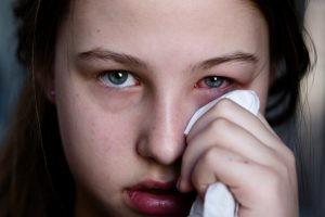 Los factores desencadenantes de la conjuntivitis alérgica son el contacto con el alérgeno que lo provoca, fundamentalmente el polen.