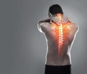 Los síntomas de la espondilolistesis pueden variar de leves a graves. Es posible que una persona con espondilolistesis no presente síntomas.
