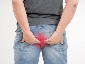 La fístula anal se clasifica según la altura a la que se localiza el orificio fistuloso interno (en el canal anal) y las estructuras que atraviesa hasta su salida al exterior.
