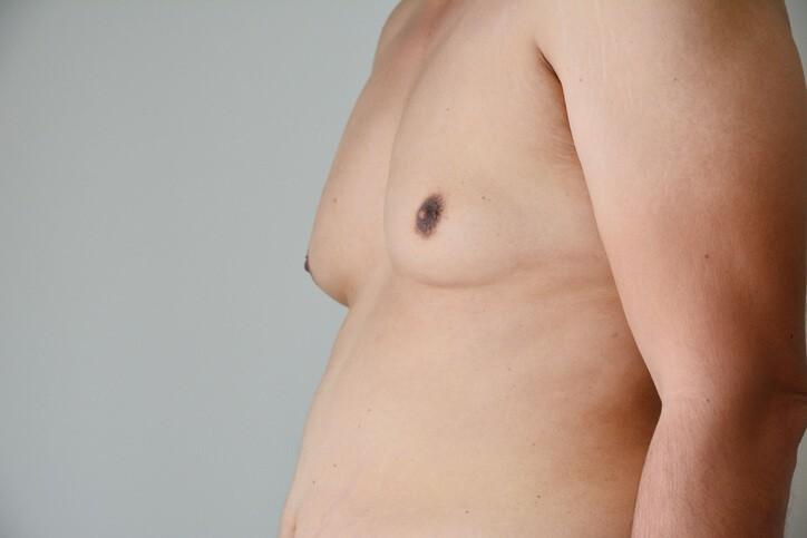 Ginecomastia, No Solo en Mujeres