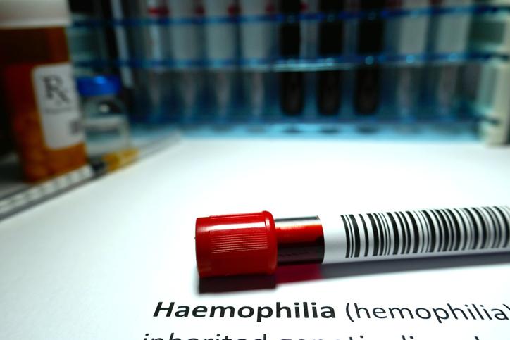 Hemofilia en Niños