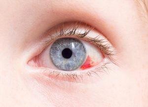 Un día, te miras al espejo y, sin haber notado nada raro, observas que tienes una hemorragia ocular… Seguramente te preguntarás: ¿es grave?.