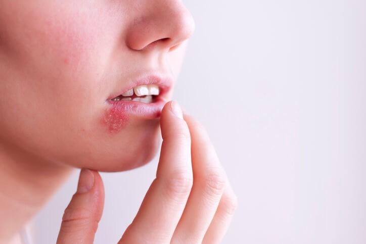 ¿Qué es el Herpes Zoster?