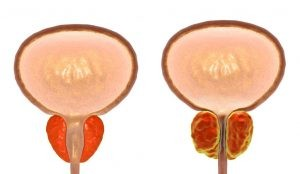 Inicialmente el crecimiento de la próstata no conlleva ningún tipo de síntomas, Sin embargo, a medida que el tejido va creciendo la próstata comprime la uretra, lo que puede dar lugar a la hiperplasia.