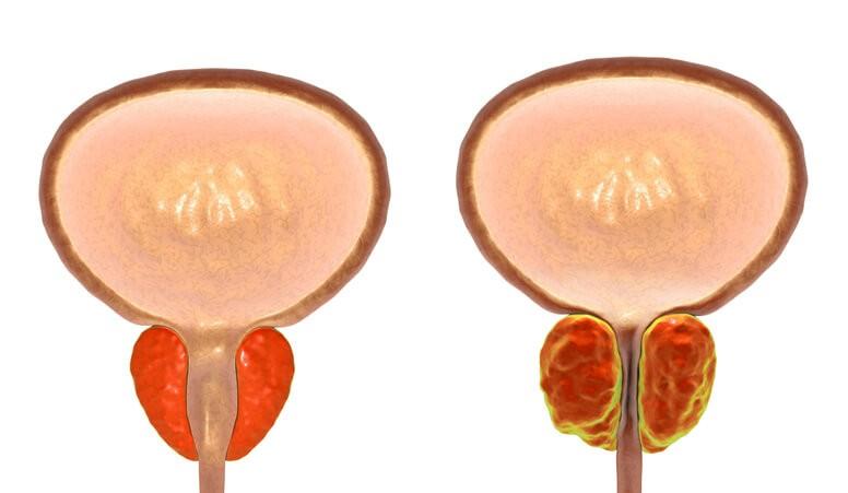 Hiperplasia Benigna: Diagnóstico