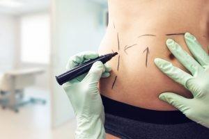La liposucción se utiliza para aspirar grasa de abdomen, brazos, glúteos, caderas, muslos, tórax y espalda.