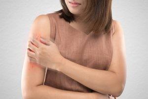 Generalmente la pitiriasis rosada se diagnostica por la apariencia de la piel, especialmente por la aparición de la placa heráldica.