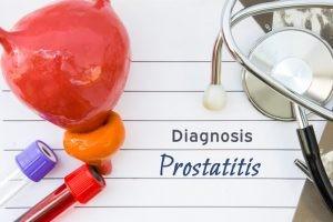En la prostatitis aguda es frecuente que sea diagnosticada por el médico de atención primaria, en un servicio de urgencias hospitalarias o en la consulta de urología