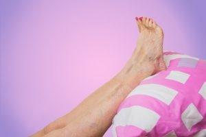 La paniculitis más frecuente se llama eritema nudoso. Es una enfermedad que se manifiesta en forma de bultos en las espinillas, muy dolorosos, que parecen golpes o hematomas.