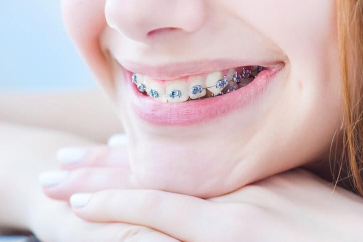 Ortodoncias: Qué es y tipos de tratamientos