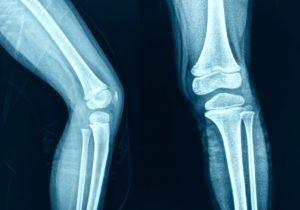 Una vez tengamos la confirmación diagnóstica de la rodilla debemos pensar en el tratamiento más indicado según los hallazgos de la resonancia