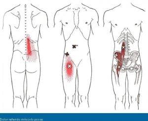 Palpamos los puntos gatillo de psoas iliaco y de otros músculos que puedan estar relacionados y comprobamos