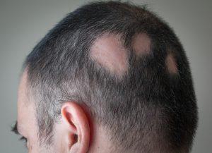 Los fármacos empleados intentarán frenar la caída del pelo e intentar, no solo que este crezca, sino que se mantenga.