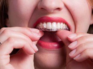 La aparatología removible, en cambio, nos permite una ingesta cómoda dado que la retiramos en las principales comidas y durante la higiene dental posterior, pero nos exige mucha constancia y perseverancia.