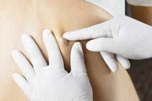 Para realizar el diagnóstico de un quiste sebáceo no hace falta realizar ninguna prueba complementaria específica.