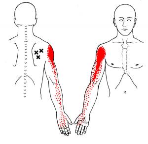 Localizar los puntos de tensión que provocan el dolor en el brazo y sensación de adormecimiento en la mano y los dedos. es fundamental.