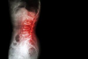 La osteopenia viene determinada por el pico máximo de masa ósea que cada individuo tiene y que se suele alcanzar a en torno a los 25-30 años.