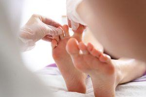 El conocido como pie de atleta o tinea pedis, es una infección de la piel denominada dermatofitosis producida por un hongo.