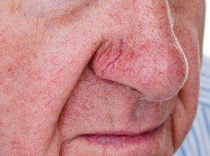 La causa de la cuperosis es sobre todo genética. Es propia de las personas de piel y ojos claros (aunque también puede afectar a personas más morenas).